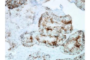Immunohistochemistry (IHC) image for anti-Heat Shock 60kDa Protein 1 (Chaperonin) (HSPD1) antibody (HRP) (ABIN2481440)
