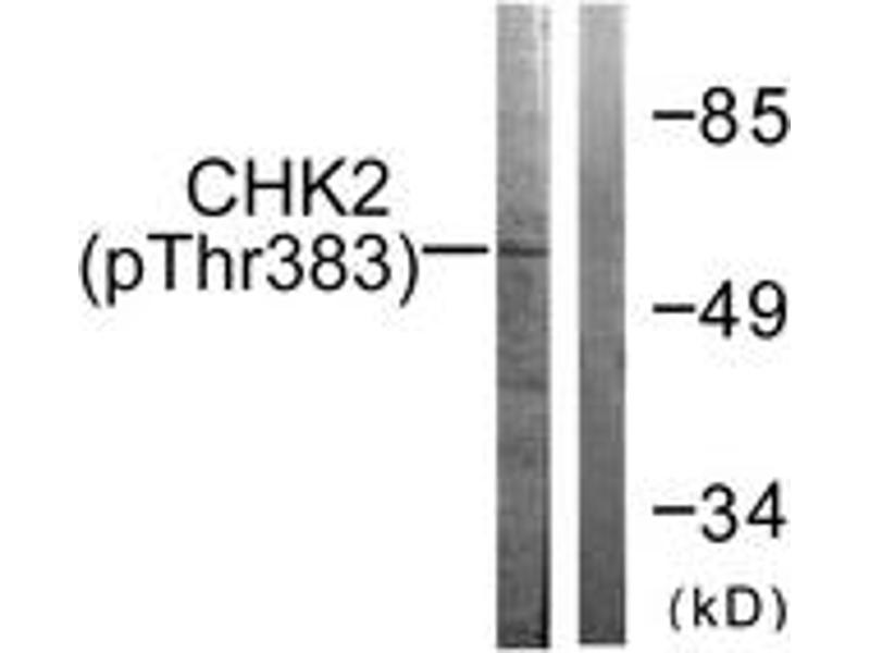 Western Blotting (WB) image for anti-CHEK2 antibody (Checkpoint Kinase 2) (pThr383) (ABIN1531498)