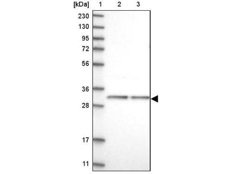 Western Blotting (WB) image for anti-Capping Protein (Actin Filament) Muscle Z-Line, beta (CAPZB) antibody (ABIN4287696)