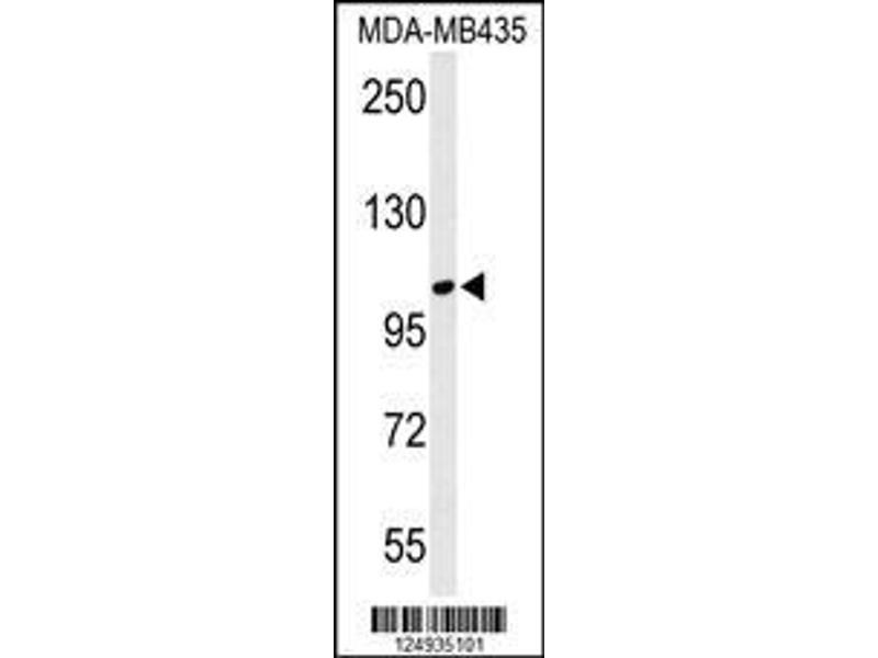Western Blotting (WB) image for anti-Leucine Zipper Protein 1 (LUZP1) (AA 1042-1070), (C-Term) antibody (ABIN650909)