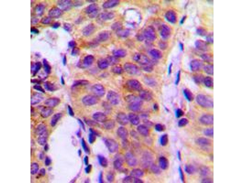 Immunohistochemistry (IHC) image for anti-phospholipase C, gamma 1 (PLCG1) (Center) antibody (ABIN2706827)
