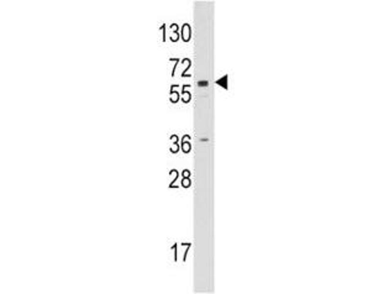 Image no. 2 for anti-Cytochrome P450, Family 19, Subfamily A, Polypeptide 1 (CYP19A1) (AA 453-485) antibody (ABIN3028608)