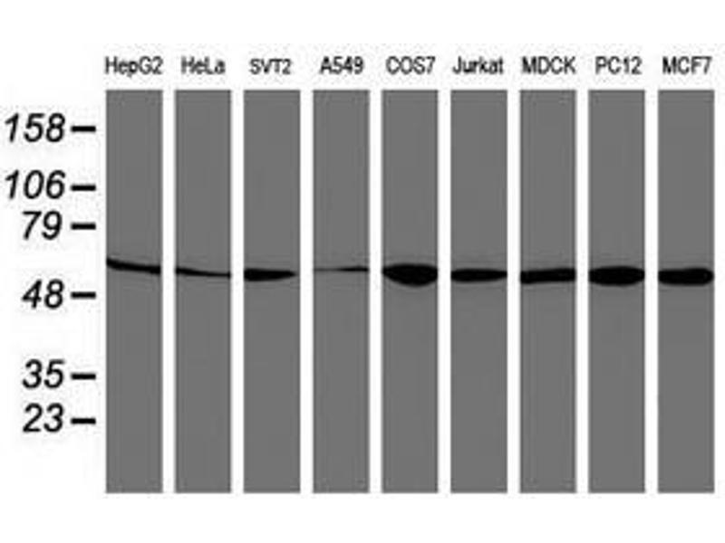 image for anti-V-Akt Murine Thymoma Viral Oncogene Homolog 1 (AKT1) antibody (ABIN1496555)