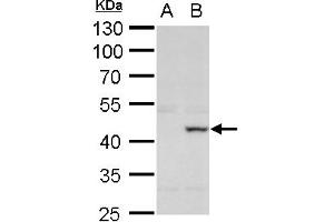 Image no. 2 for anti-X-Ray Repair Complementing Defective Repair in Chinese Hamster Cells 3 (XRCC3) (C-Term) antibody (ABIN2857069)