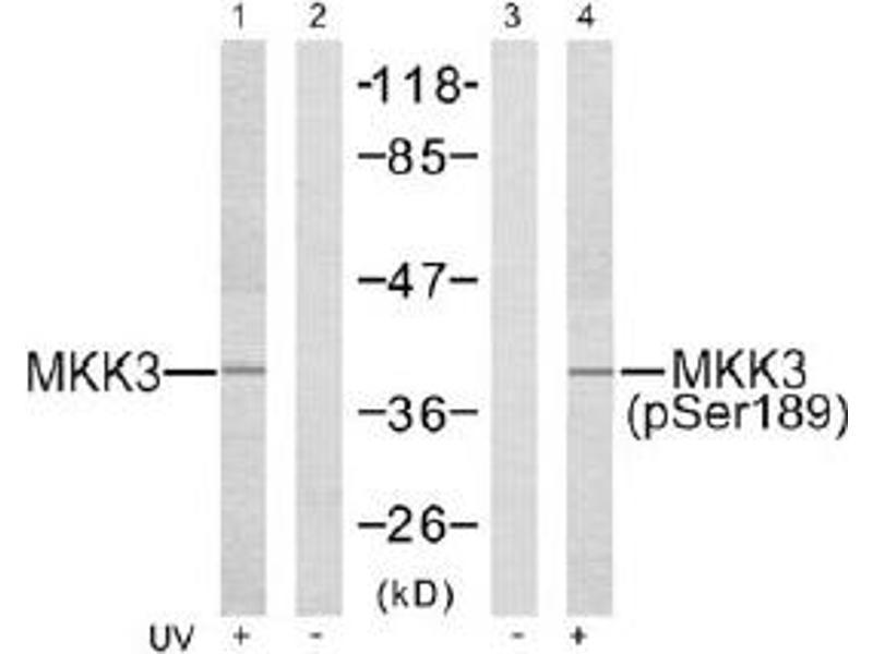 Western Blotting (WB) image for anti-MAP2K3 antibody (Mitogen-Activated Protein Kinase Kinase 3) (Ser189) (ABIN257414)