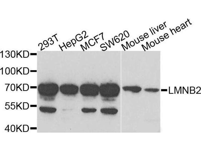 Western Blotting (WB) image for anti-Lamin B2 (LMNB2) antibody (ABIN2563696)