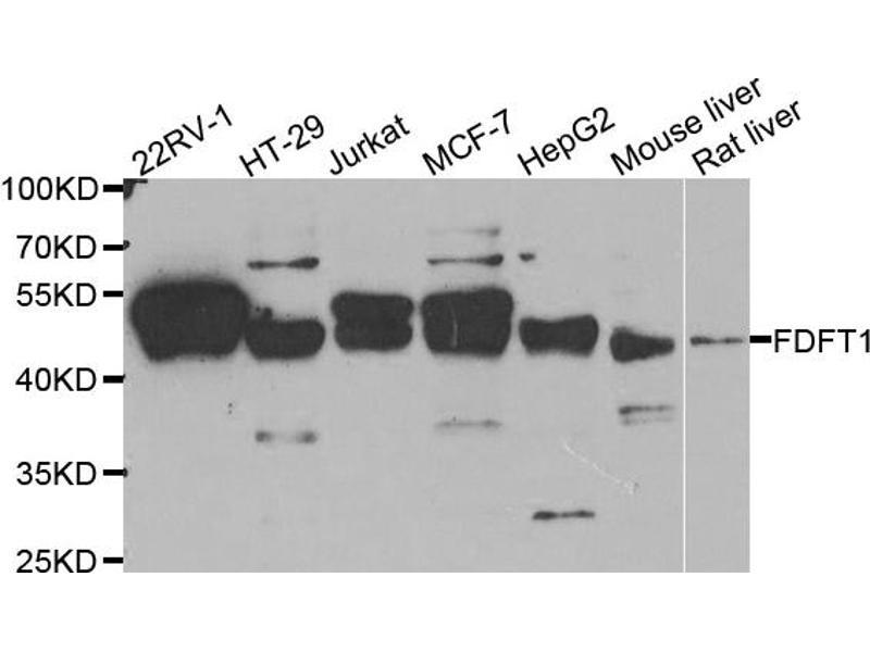 Western Blotting (WB) image for anti-Farnesyl-Diphosphate Farnesyltransferase 1 (FDFT1) antibody (ABIN5965685)