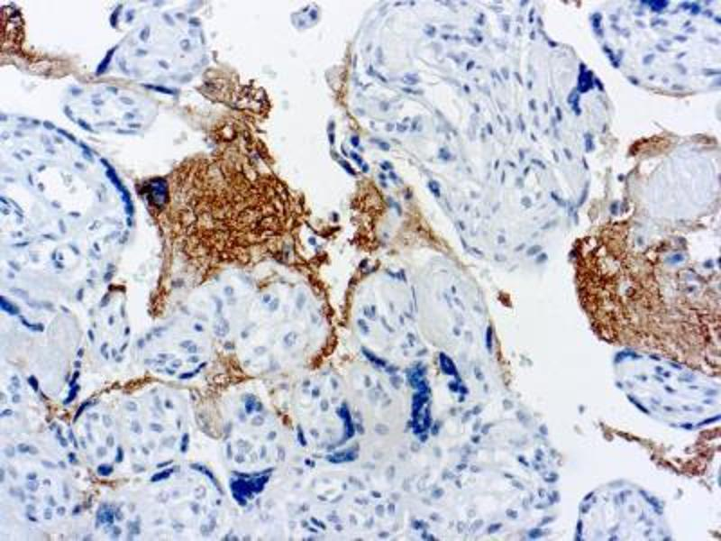 Immunofluorescence (Paraffin-embedded Sections) (IF (p)) image for anti-Thrombospondin 1 (THBS1) antibody (ABIN151527)