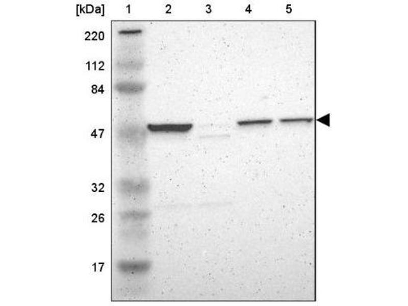 Western Blotting (WB) image for anti-Hyaluronidase-1 (HYAL1) antibody (ABIN4320742)