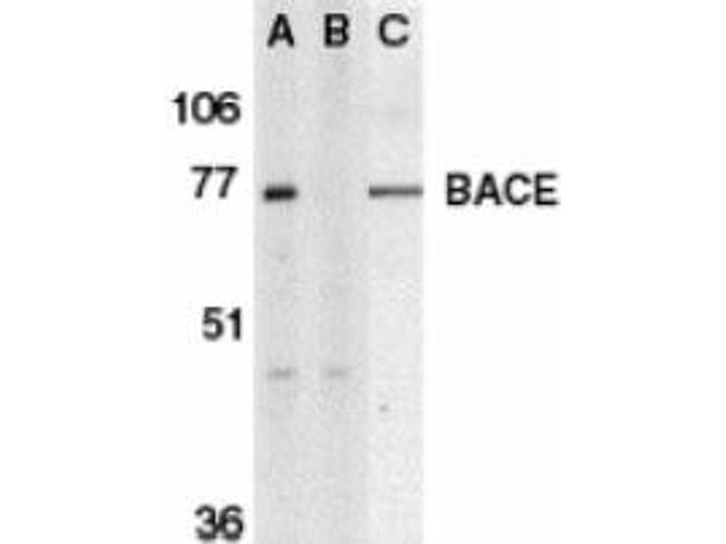image for anti-beta-Site APP-Cleaving Enzyme 1 (BACE) antibody (ABIN401041)