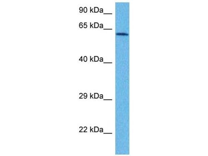 Western Blotting (WB) image for anti-NADPH Oxidase 1 (NOX1) (C-Term) antibody (ABIN2782754)