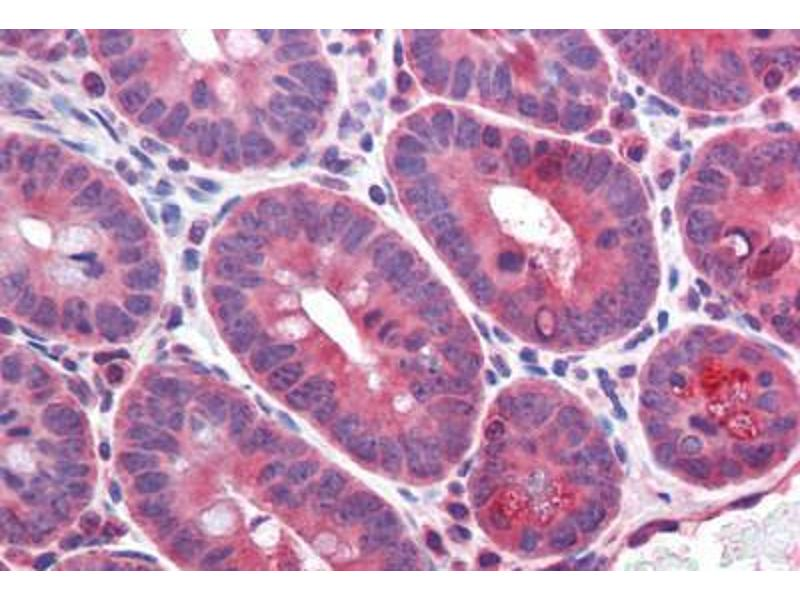 Image no. 3 for anti-CD36 Molecule (thrombospondin Receptor) (CD36) (AA 99-114) antibody (ABIN2618488)