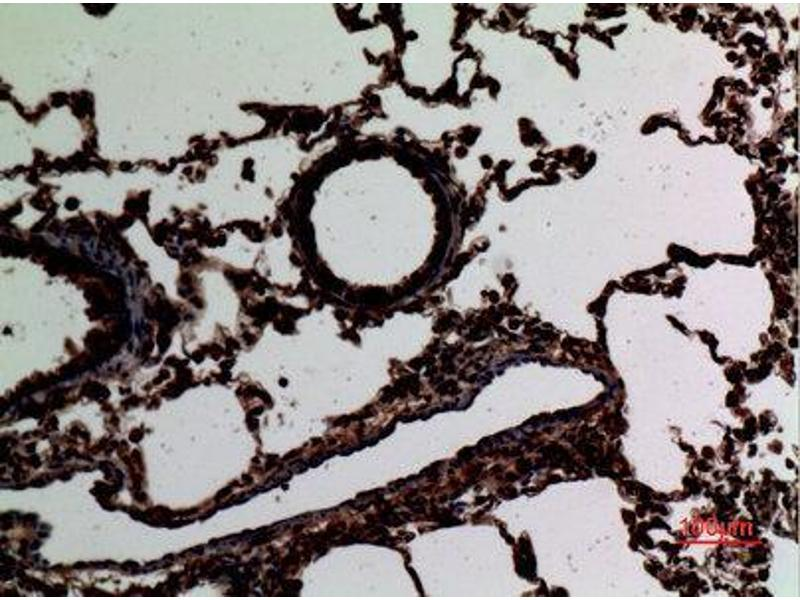 Immunohistochemistry (IHC) image for anti-Signal Transducer and Activator of Transcription 2, 113kDa (STAT2) (Tyr1221), (Tyr1222) antibody (ABIN3187617)