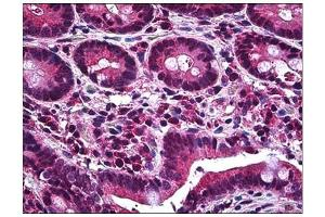 Immunohistochemistry (Paraffin-embedded Sections) (IHC (p)) image for anti-MCL-1 antibody (Induced Myeloid Leukemia Cell Differentiation Protein Mcl-1) (AA 121-139) (ABIN783904)