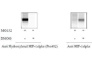 ELISA image for Hydroxylated HIF-1 alpha (P402) ELISA Kit (ABIN4889777)