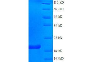 Image no. 1 for Fragile Histidine Triad (FHIT) (AA 2-147), (full length) protein (His tag) (ABIN1046624)
