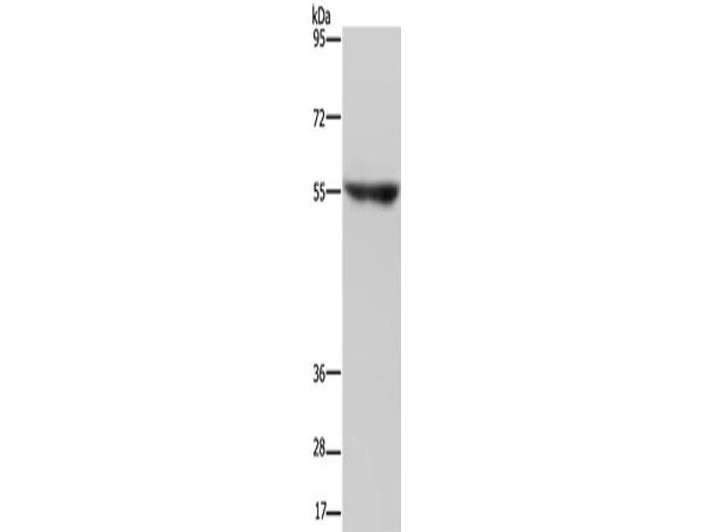 Western Blotting (WB) image for anti-Neuregulin 3 (NRG3) antibody (ABIN2434194)