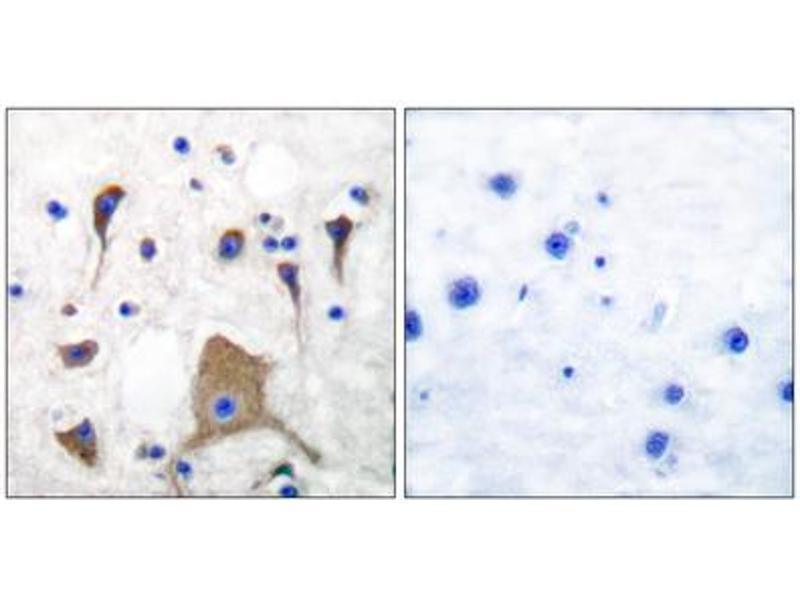Immunohistochemistry (IHC) image for anti-Glutamate Receptor, Ionotropic, Kainate 1 (GRIK1) (N-Term) antibody (ABIN1848574)