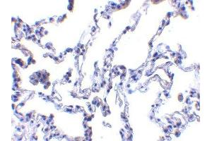 Immunohistochemistry (Paraffin-embedded Sections) (IHC (p)) image for anti-Ribonucleotide Reductase M2 B (TP53 Inducible) (RRM2B) (N-Term) antibody (ABIN4343019)