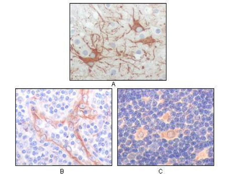 Immunohistochemistry (IHC) image for anti-FES antibody (Feline Sarcoma Oncogene) (AA 613-822) (ABIN969134)