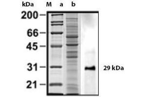 image for anti-MYD88 antibody (Myeloid Differentiation Primary Response Gene (88)) (ABIN191492)