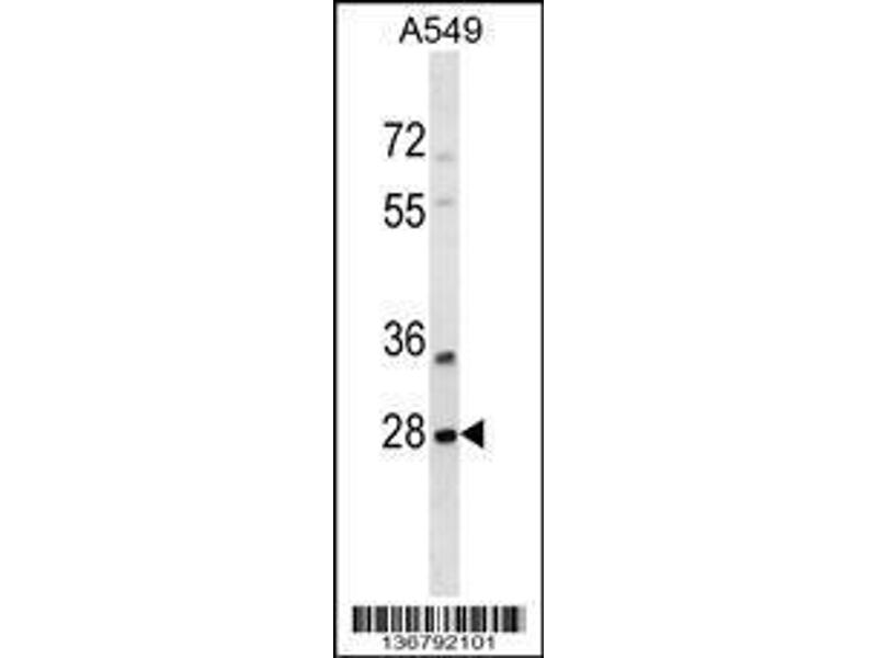 Western Blotting (WB) image for anti-SNF8, ESCRT-II Complex Subunit, Homolog (S. Cerevisiae) (SNF8) (AA 37-65), (N-Term) antibody (ABIN1539325)