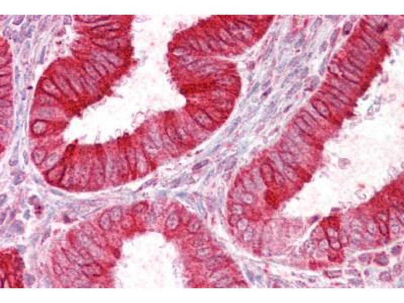 Immunohistochemistry (IHC) image for anti-Sodium Channel, Nonvoltage-Gated 1, delta (SCNN1D) (AA 694-704) antibody (ABIN962682)