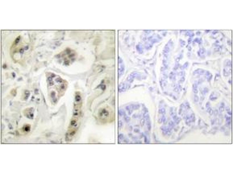 Immunohistochemistry (IHC) image for anti-Heat Shock 60kDa Protein 1 (Chaperonin) (HSPD1) (AA 511-560) antibody (ABIN1533313)