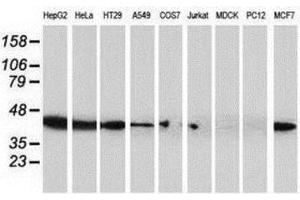 Western Blotting (WB) image for anti-ADP-Ribosylation Factor GTPase Activating Protein 1 (ARFGAP1) antibody (ABIN4281365)