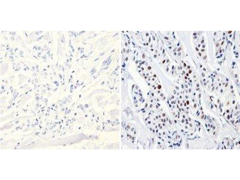 Immunohistochemistry (Paraffin-embedded Sections) (IHC (p)) image for anti-DNMT3B antibody (DNA (Cytosine-5-)-Methyltransferase 3 beta) (AA 1-14) (ABIN152675)