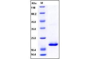 Image no. 1 for Retinol Binding Protein 4, Plasma (RBP4) (AA 1-201) (Active) protein (His tag) (ABIN2007447)