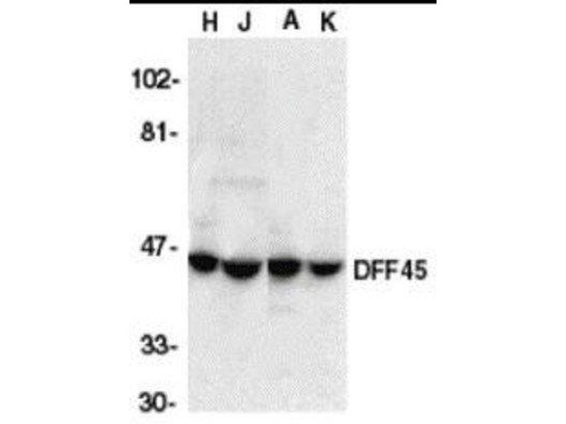 Western Blotting (WB) image for anti-DNA Fragmentation Factor, 45kDa, alpha Polypeptide (DFFA) (C-Term) antibody (ABIN4305087)