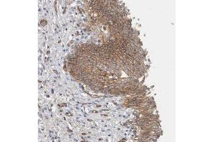 Immunohistochemistry (Paraffin-embedded Sections) (IHC (p)) image for anti-CD59 (CD59) antibody (ABIN4294896)