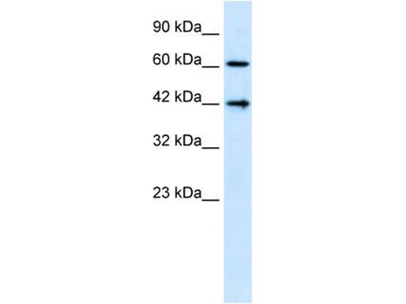 Western Blotting (WB) image for anti-CFLAR antibody (CASP8 and FADD-Like Apoptosis Regulator) (N-Term) (ABIN2792098)
