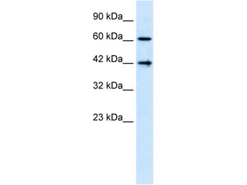 Western Blotting (WB) image for anti-CASP8 and FADD-Like Apoptosis Regulator (CFLAR) (N-Term) antibody (ABIN2792098)