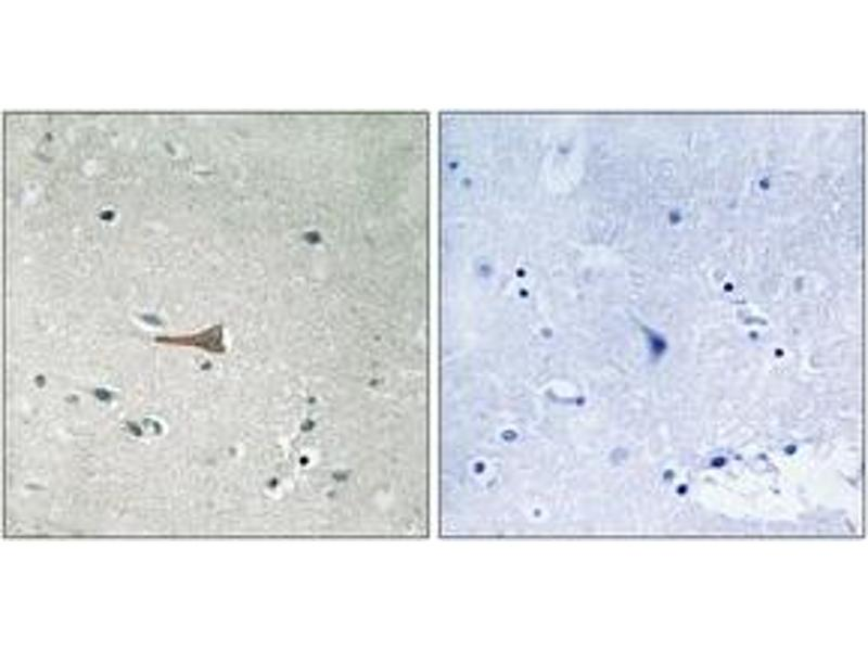 Immunohistochemistry (IHC) image for anti-Discoidin Domain Receptor tyrosine Kinase 1 (DDR1) (pTyr513), (AA 479-528) antibody (ABIN1532104)