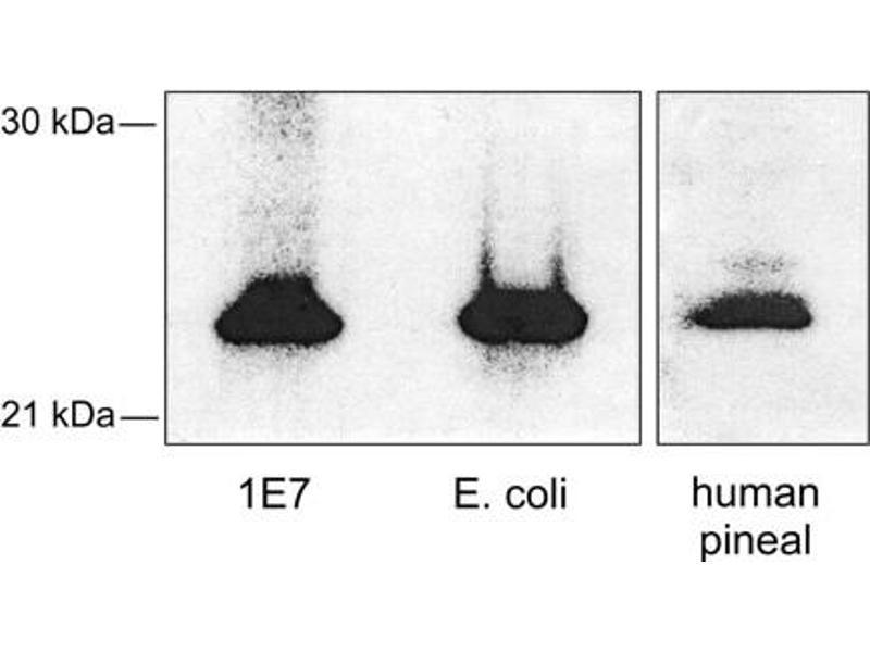 Western Blotting (WB) image for anti-AANAT antibody (Aralkylamine N-Acetyltransferase) (ABIN250114)