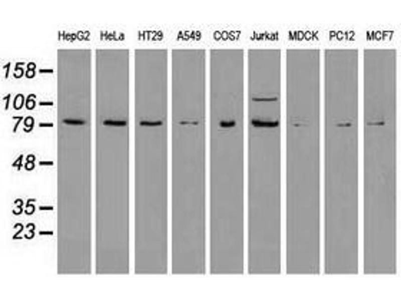 image for anti-BRAF antibody (V-Raf Murine Sarcoma Viral Oncogene Homolog B1) (ABIN1496954)