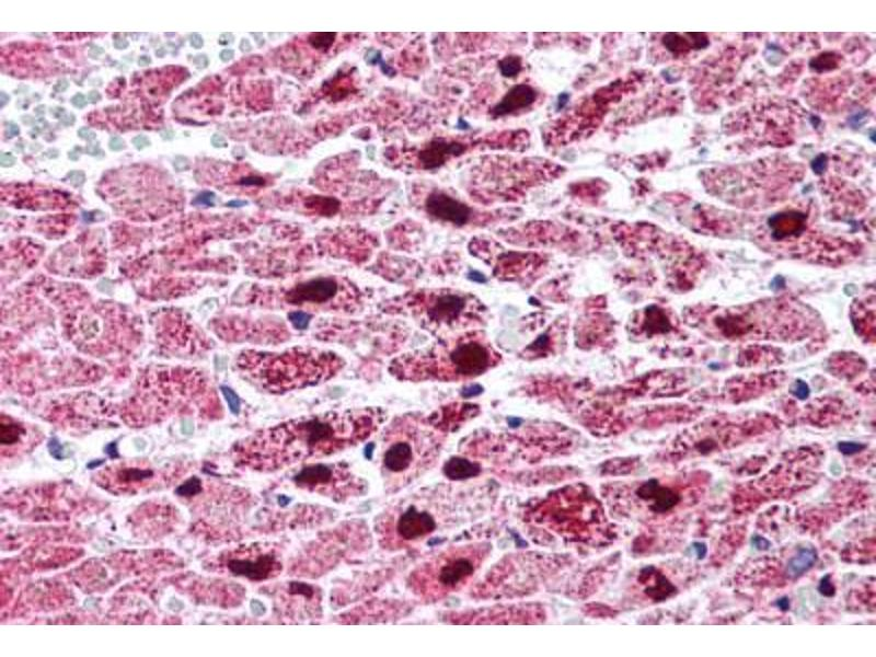 Immunohistochemistry (Paraffin-embedded Sections) (IHC (p)) image for anti-PPARG antibody (Peroxisome Proliferator-Activated Receptor gamma) (Internal Region) (ABIN214562)