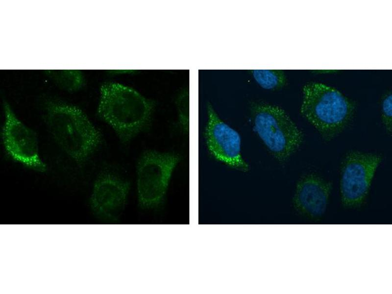 Immunofluorescence (IF) image for anti-Complement Component 3 (C3) (C-Term) antibody (ABIN2855007)