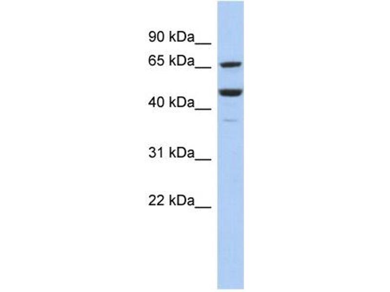 Western Blotting (WB) image for anti-Splicing Factor 1 (SF1) (Middle Region) antibody (ABIN2777969)