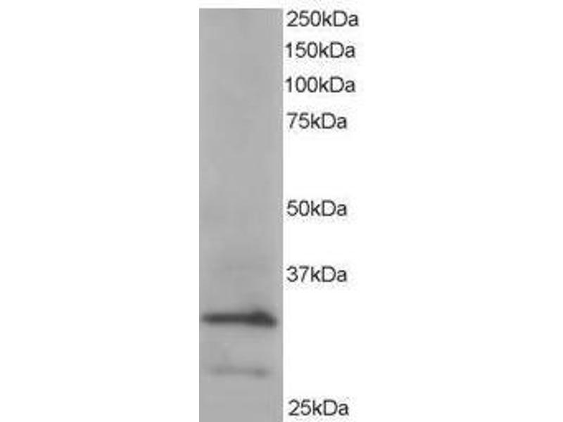 image for anti-ARPC2 antibody (Actin Related Protein 2/3 Complex, Subunit 2, 34kDa) (C-Term) (ABIN374215)