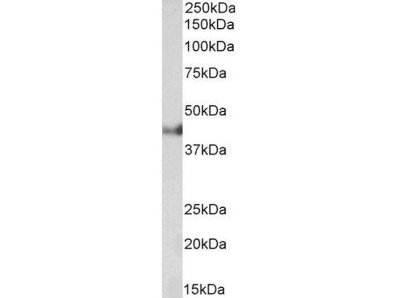 Western Blotting (WB) image for anti-Keratin 18 (KRT18) antibody (ABIN5609867)