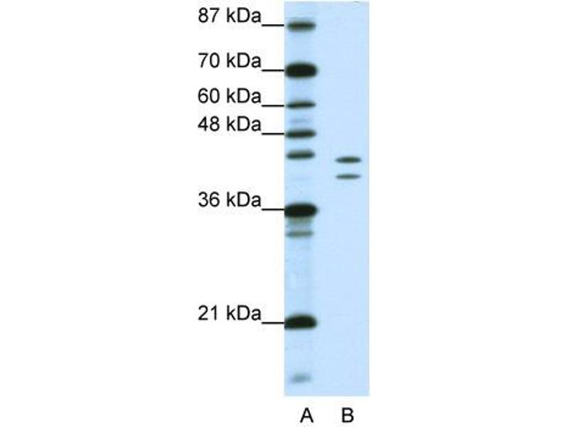 Image no. 1 for anti-Heterogeneous Nuclear Ribonucleoprotein D (AU-Rich Element RNA Binding Protein 1, 37kDa) (HNRNPD) (N-Term) antibody (ABIN2778694)
