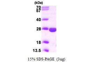 Image no. 1 for phosphopantothenoylcysteine Decarboxylase (PPCDC) (AA 1-204) protein (His tag) (ABIN667238)