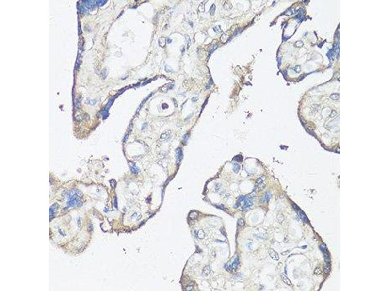 Immunohistochemistry (Paraffin-embedded Sections) (IHC (p)) image for anti-Caspase 3, Apoptosis-Related Cysteine Peptidase (CASP3) antibody (ABIN3023067)