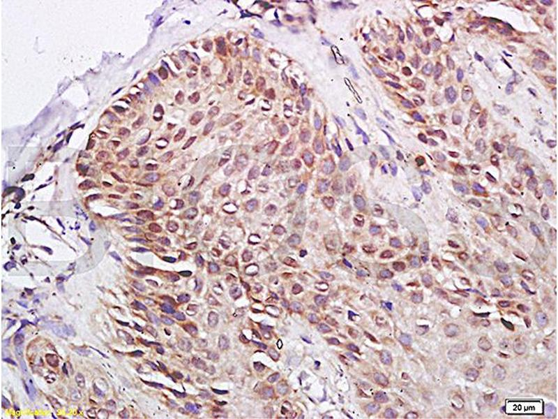 Immunohistochemistry (IHC) image for anti-Peroxisome Proliferator-Activated Receptor gamma (PPARG) antibody (ABIN669711)