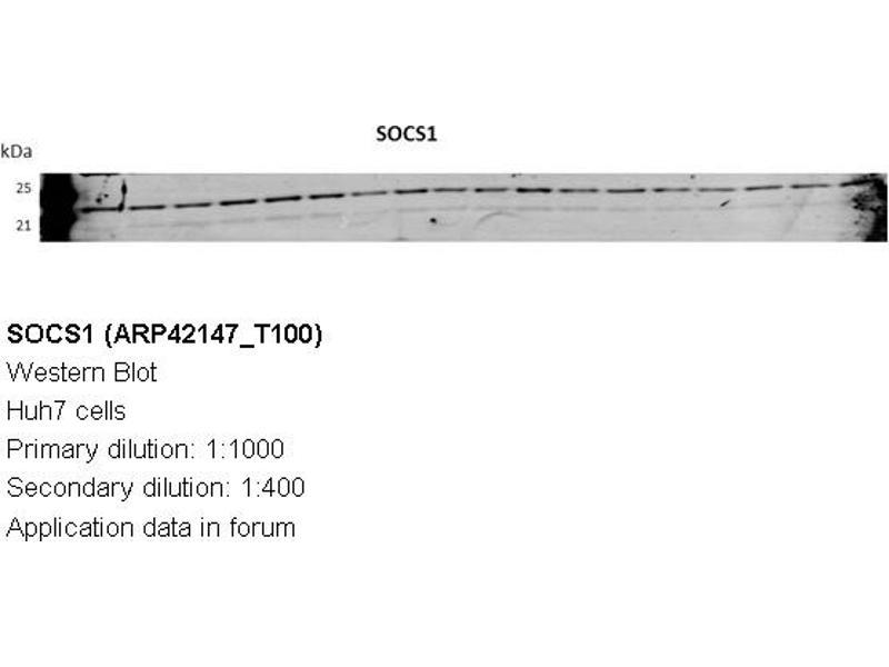 image for anti-Suppressor of Cytokine Signaling 1 (SOCS1) (N-Term) antibody (ABIN2777164)