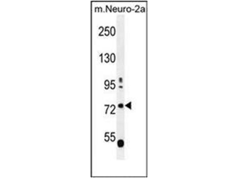 Western Blotting (WB) image for anti-Leucine-Rich Repeat and WD Repeat-Containing Protein 1 (LRWD1) (AA 4-33), (N-Term) antibody (ABIN953241)