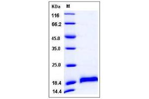 Image no. 1 for Cerebral Dopamine Neurotrophic Factor (CDNF) (AA 1-187) protein (His tag) (ABIN2007976)